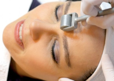Bloody Beauty - Would You Try At-Home Micro-Needling?
