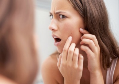 How To Zap Those Zits!