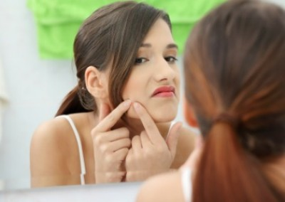 Seven Weird Ways To Zap A Zit!