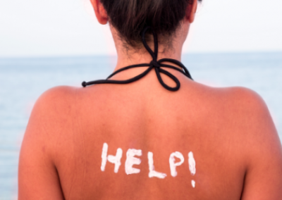 Sunburnt? Here's How to Suffer LESS and Heal FASTER!
