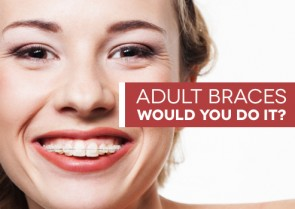 Adult Braces - Would you? Could you?